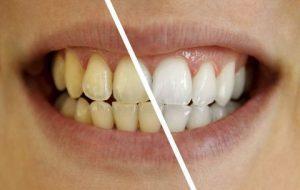 Dental White Strips цена,в аптеките, поръчка, къде да купя