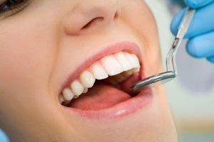 причината за старчески петна по зъбите
